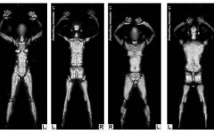 Welcome Airline Passenger – Will That be Body Scan or Rigorous Pat Down?