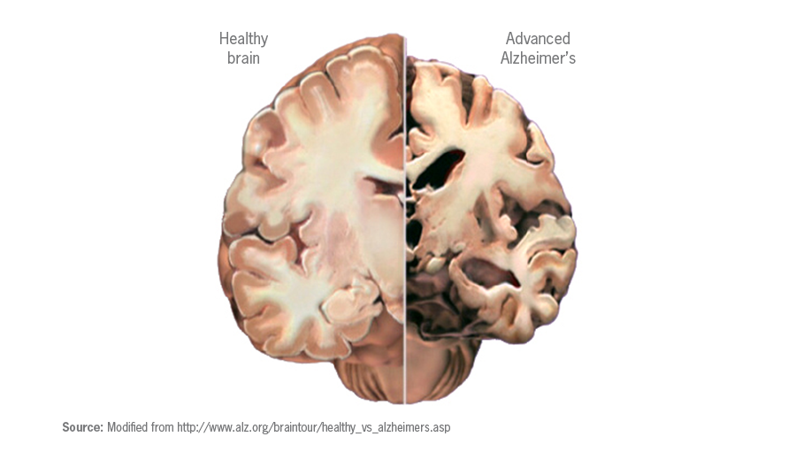 Alzheimer%27s+and+My+Experience